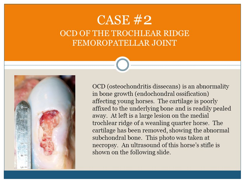 CASE #2 OCD OF THE TROCHLEAR RIDGE FEMOROPATELLAR JOINT OCD (osteochondritis dissecans) is an abnormality in bone growth (endochondral ossification) affecting young horses.