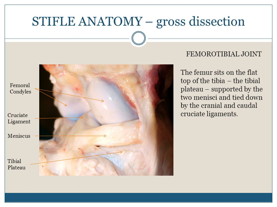 STIFLE ANATOMY – gross dissection Femoral Condyles Meniscus Tibial Plateau Cruciate Ligament FEMOROTIBIAL JOINT The femur sits on the flat top of the tibia – the tibial plateau – supported by the two menisci and tied down by the cranial and caudal cruciate ligaments.