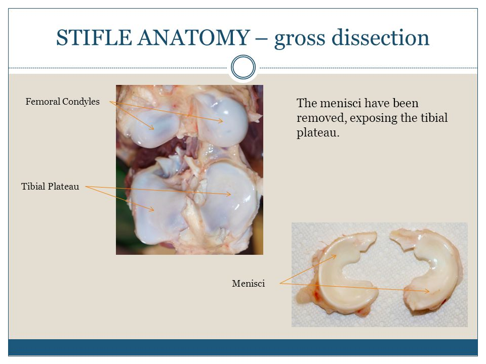STIFLE ANATOMY – gross dissection Femoral Condyles Tibial Plateau Menisci The menisci have been removed, exposing the tibial plateau.