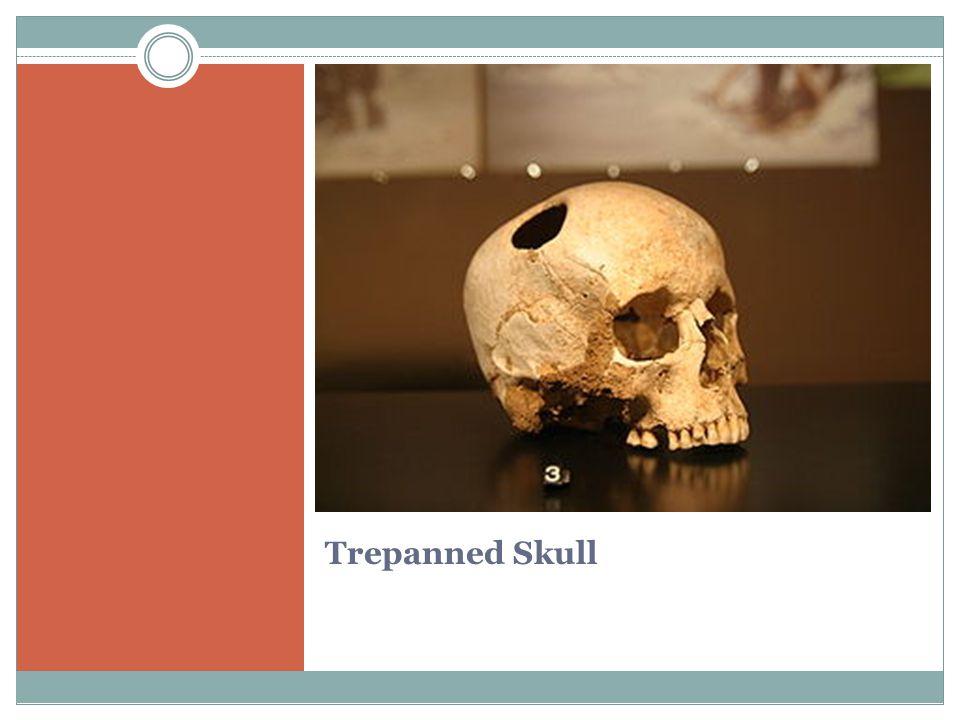 Trepanned Skull
