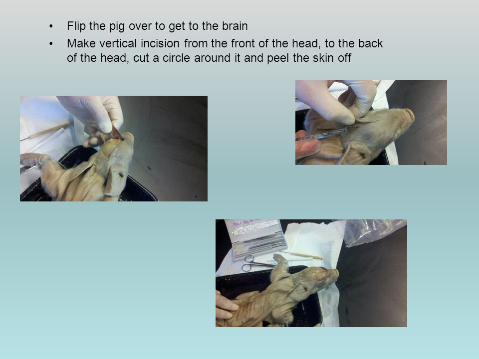 Flip the pig over to get to the brain Make vertical incision from the front of the head, to the back of the head, cut a circle around it and peel the skin off