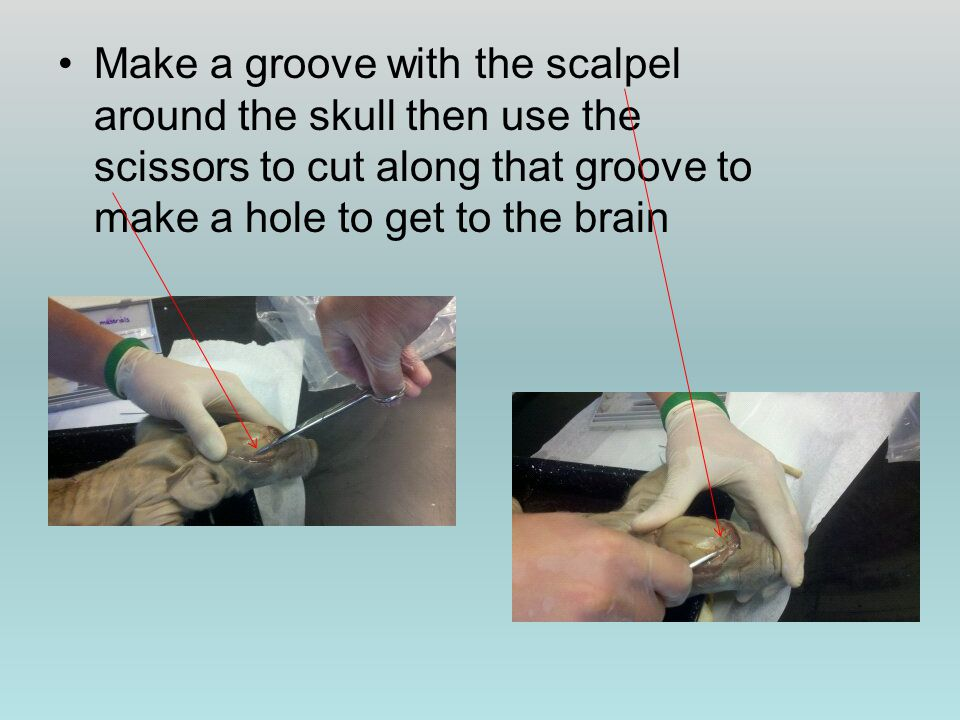 Make a groove with the scalpel around the skull then use the scissors to cut along that groove to make a hole to get to the brain