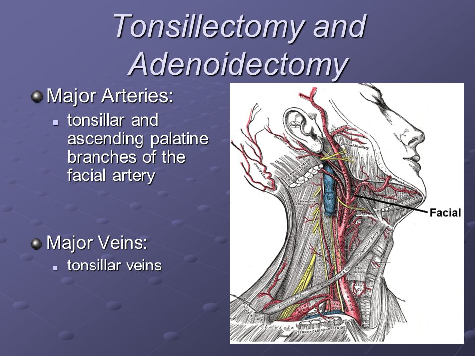 Tonsillectomy and Adenoidectomy Major Arteries: tonsillar and ascending palatine branches of the facial artery tonsillar and ascending palatine branch