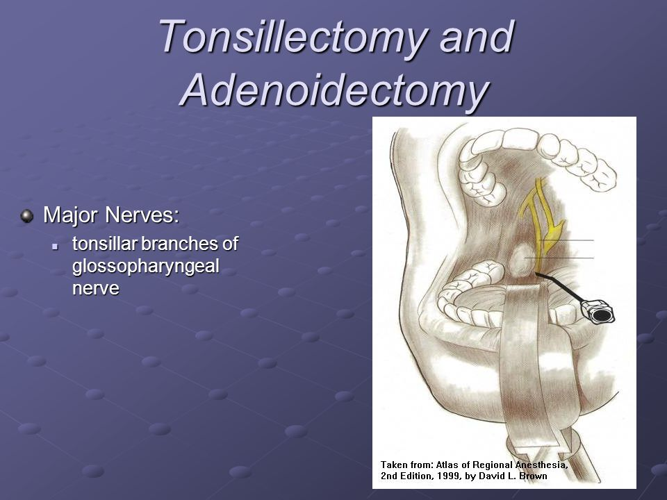 Tonsillectomy and Adenoidectomy Major Nerves: tonsillar branches of glossopharyngeal nerve tonsillar branches of glossopharyngeal nerve