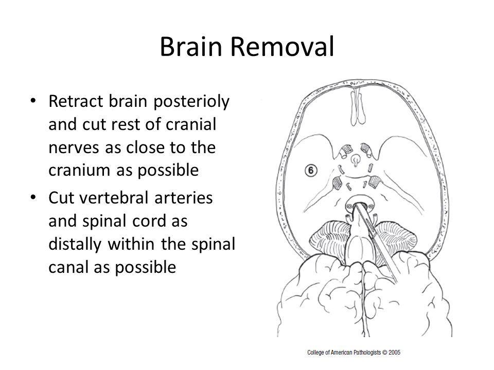 Brain Removal Retract brain posterioly and cut rest of cranial nerves as close to the cranium as possible Cut vertebral arteries and spinal cord as distally within the spinal canal as possible