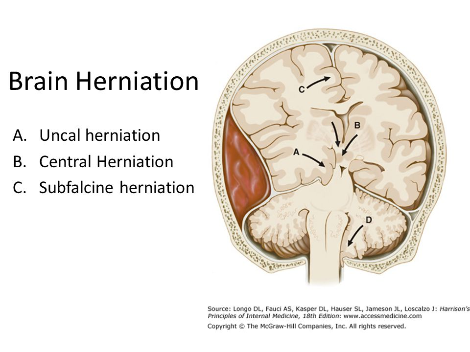 Brain Herniation A.Uncal herniation B.Central Herniation C.Subfalcine herniation