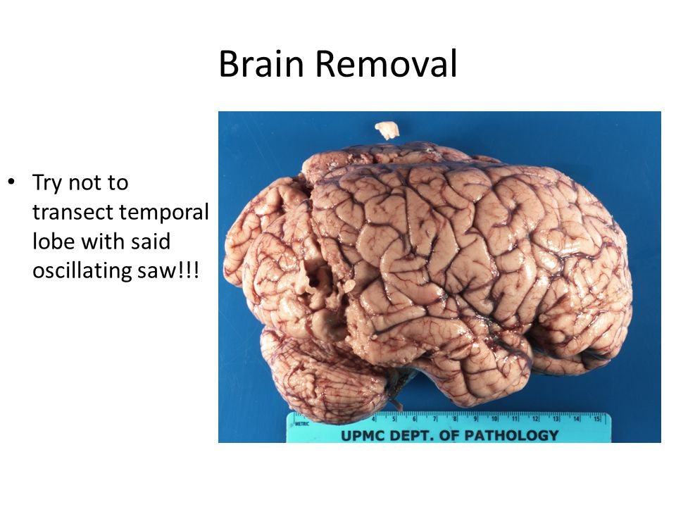 Brain Removal However, the globally edematous brain will jump out and impale itself on the saw Not much you can do about it Edematous brain with uncal and cerebellar tonsillar herniation – saw marks right into ventricle