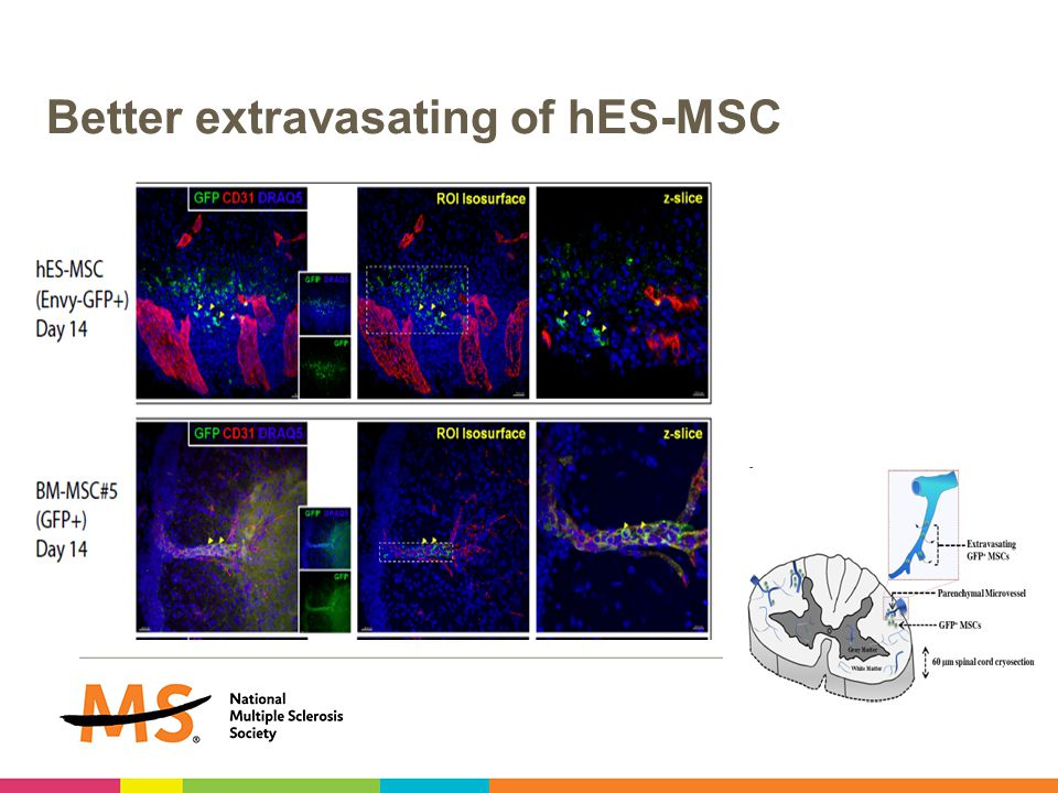 Better extravasating of hES-MSC