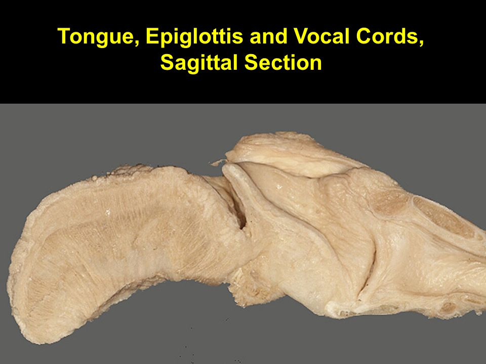 Tongue, Epiglottis and Vocal Cords, Sagittal Section