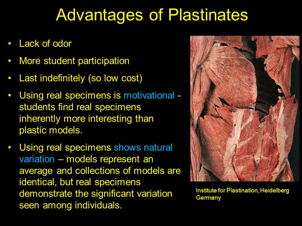 Advantages of Plastinates Lack of odor More student participation Last indefinitely (so low cost) Using real specimens is motivational - students find real specimens inherently more interesting than plastic models.