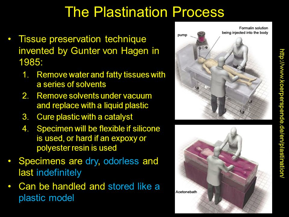 The Plastination Process Tissue preservation technique invented by Gunter von Hagen in 1985: 1.Remove water and fatty tissues with a series of solvents 2.Remove solvents under vacuum and replace with a liquid plastic 3.Cure plastic with a catalyst 4.Specimen will be flexible if silicone is used, or hard if an expoxy or polyester resin is used Specimens are dry, odorless and last indefinitely Can be handled and stored like a plastic model http://www.koerperspende.de/en/plastination/