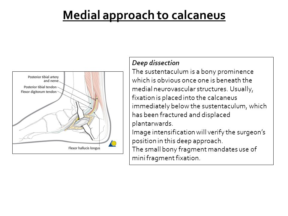 Medial approach to calcaneus Deep dissection The sustentaculum is a bony prominence which is obvious once one is beneath the medial neurovascular stru