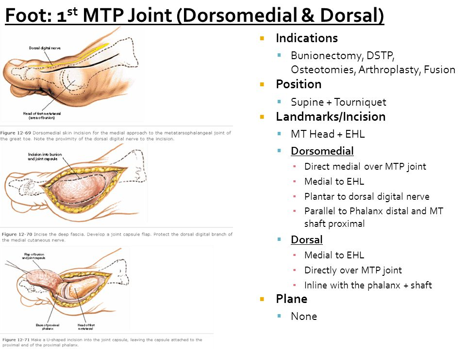 Foot: 1 st MTP Joint (Dorsomedial & Dorsal)  Indications  Bunionectomy, DSTP, Osteotomies, Arthroplasty, Fusion  Position  Supine + Tourniquet  Landmarks/Incision  MT Head + EHL  Dorsomedial ▪ Direct medial over MTP joint ▪ Medial to EHL ▪ Plantar to dorsal digital nerve ▪ Parallel to Phalanx distal and MT shaft proximal  Dorsal ▪ Medial to EHL ▪ Directly over MTP joint ▪ Inline with the phalanx + shaft  Plane  None
