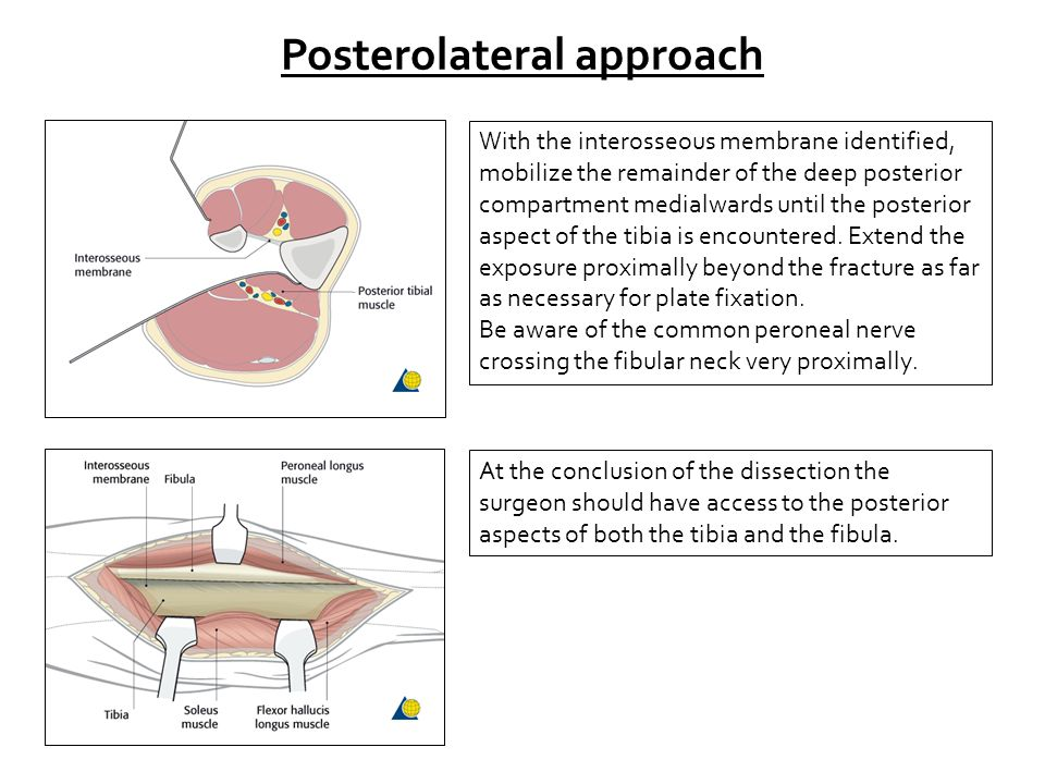Posterolateral approach With the interosseous membrane identified, mobilize the remainder of the deep posterior compartment medialwards until the posterior aspect of the tibia is encountered.