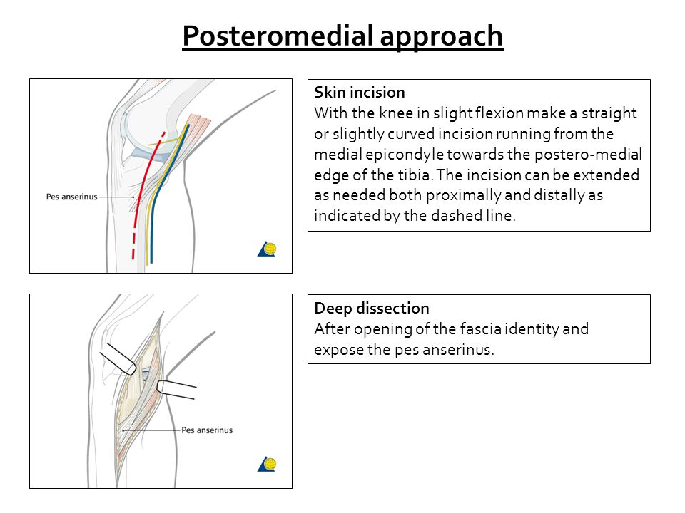 Posteromedial approach Skin incision With the knee in slight flexion make a straight or slightly curved incision running from the medial epicondyle towards the postero-medial edge of the tibia.