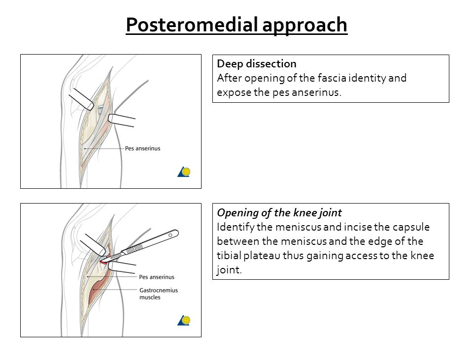 Posteromedial approach Deep dissection After opening of the fascia identity and expose the pes anserinus. Opening of the knee joint Identify the menis