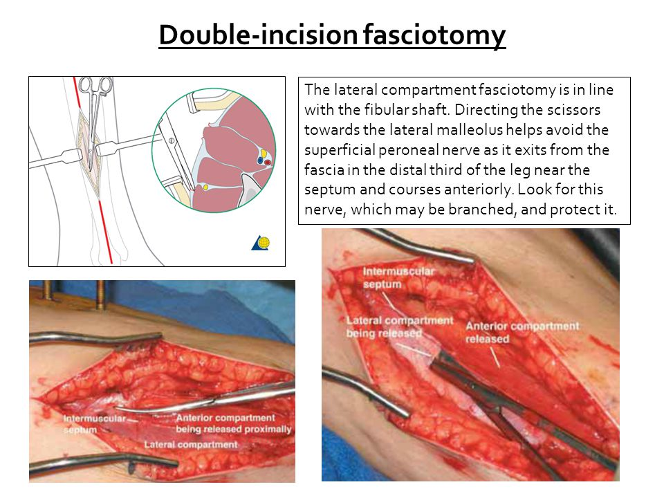 Double-incision fasciotomy The lateral compartment fasciotomy is in line with the fibular shaft.