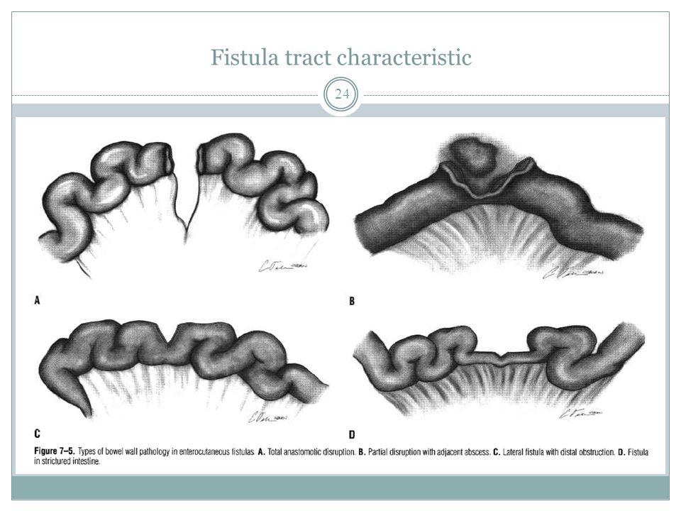 Fistula tract characteristic 24