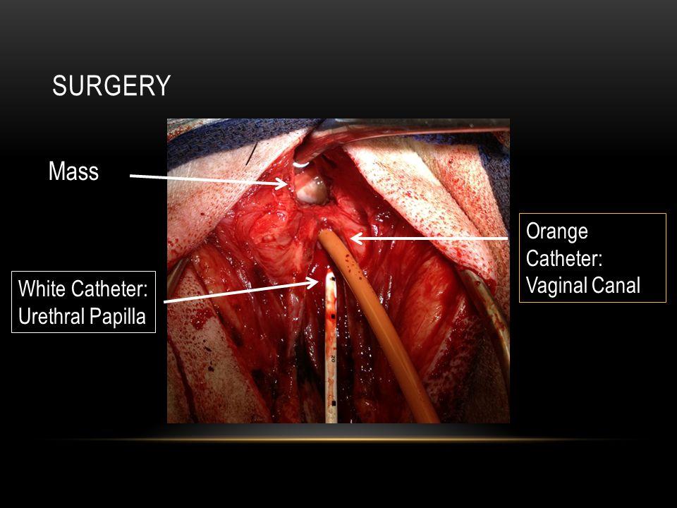 SURGERY White Catheter: Urethral Papilla Orange Catheter: Vaginal Canal Mass