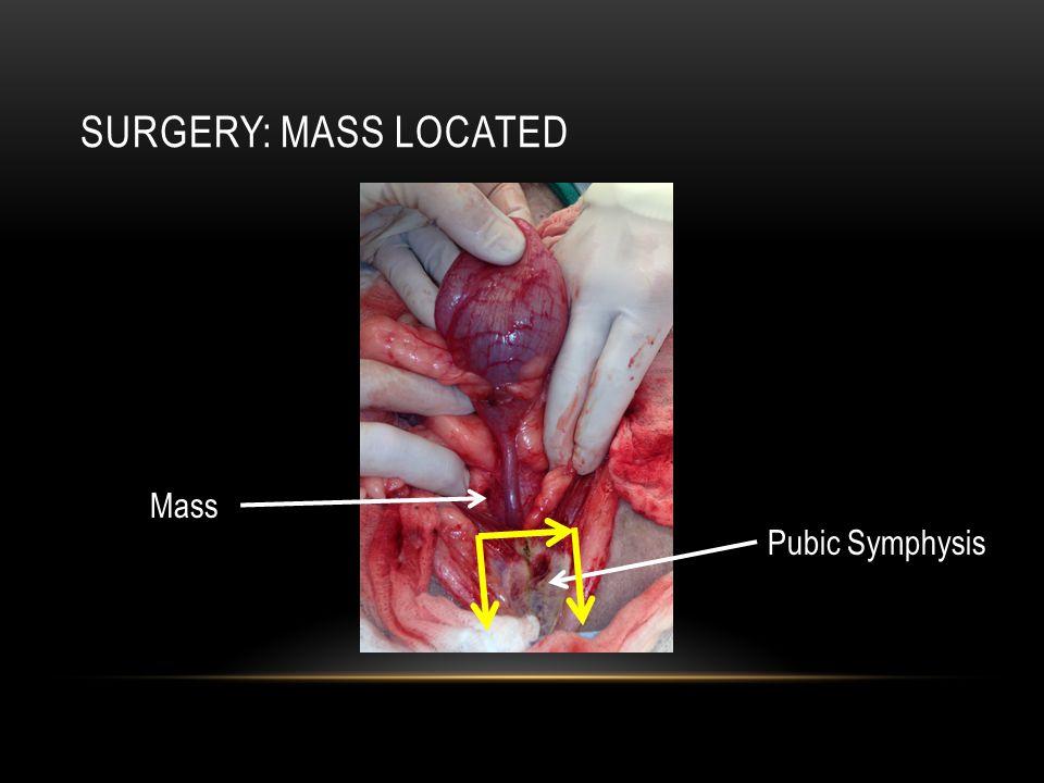 SURGERY: MASS LOCATED Pubic Symphysis Mass