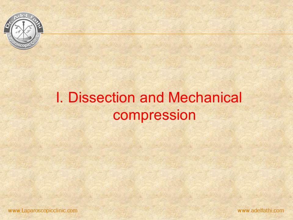 www.Laparoscopicclinic.comwww.adelfathi.com I. Dissection and Mechanical compression
