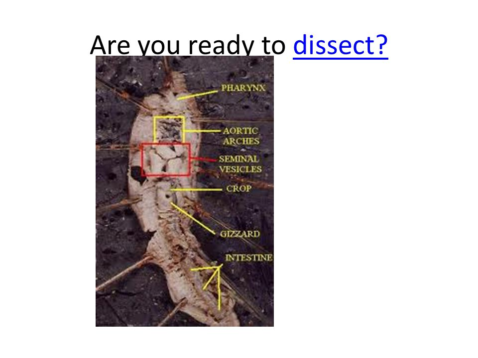 Are you ready to dissect?dissect?