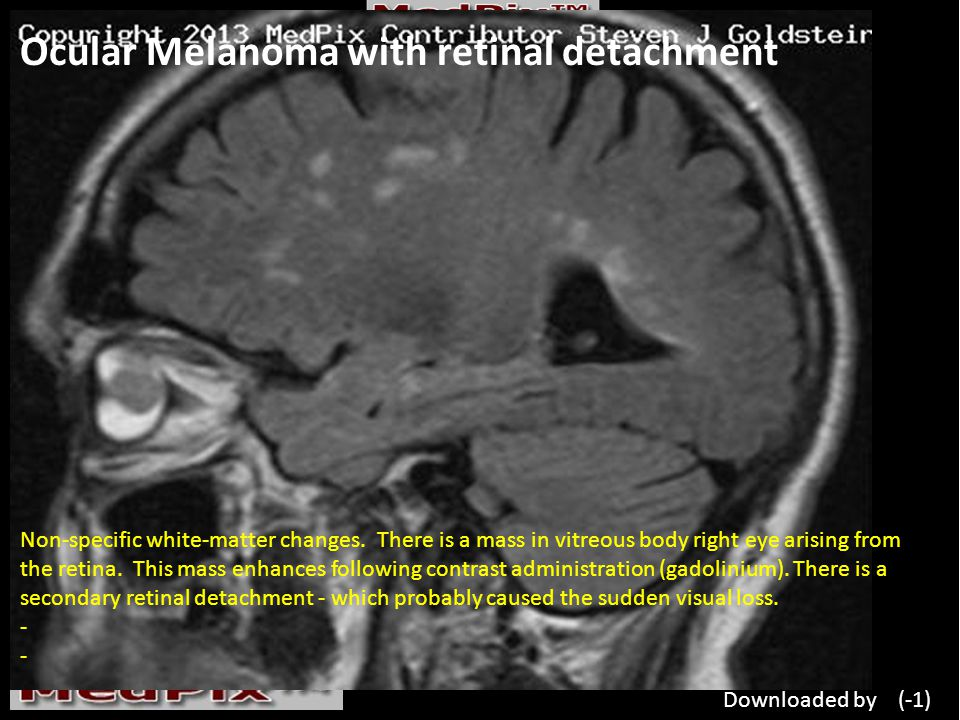 Ocular Melanoma with retinal detachment Non-specific white-matter changes.