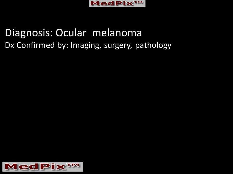 Diagnosis: Ocular melanoma Dx Confirmed by: Imaging, surgery, pathology