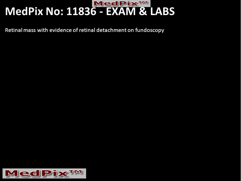 MedPix No: 11836 - EXAM & LABS Retinal mass with evidence of retinal detachment on fundoscopy