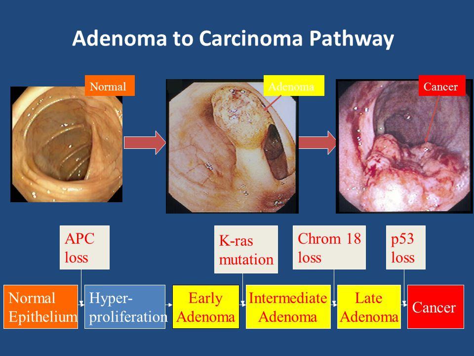 Adenoma to Carcinoma Pathway APC loss Normal Epithelium Early Adenoma Cancer Hyper- proliferation Intermediate Adenoma Late Adenoma K-ras mutation Chr