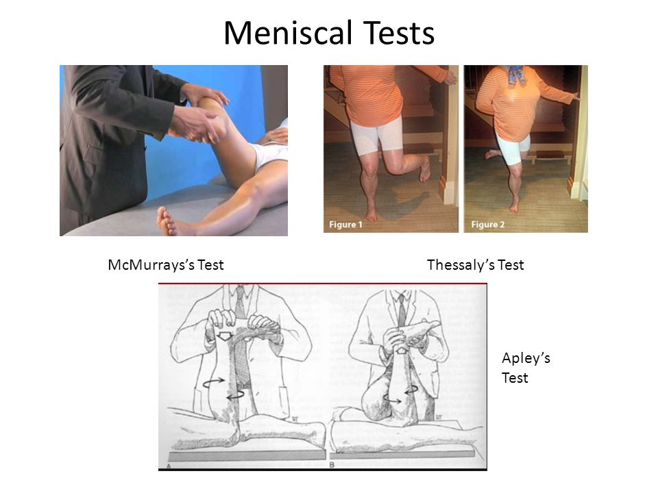 Meniscal Tests McMurrays's Test Thessaly's Test Apley's Test