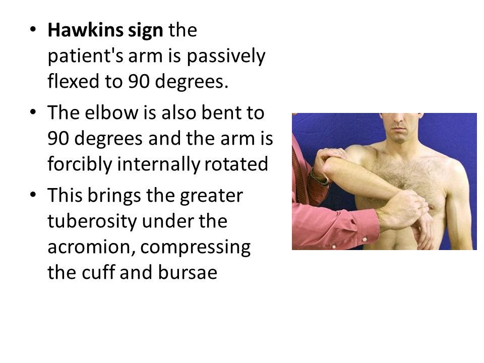 Hawkins sign the patient s arm is passively flexed to 90 degrees.