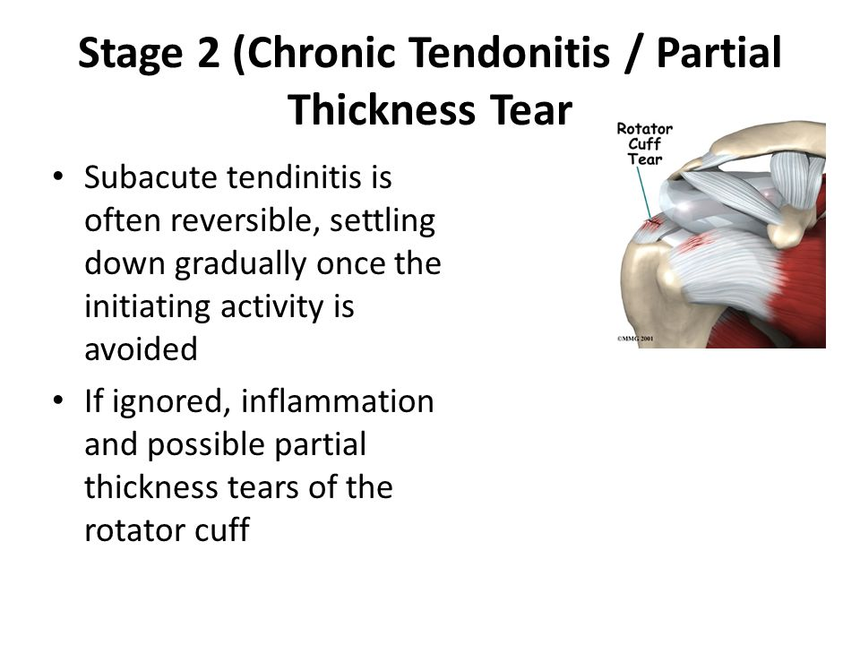 Stage 2 (Chronic Tendonitis / Partial Thickness Tear Subacute tendinitis is often reversible, settling down gradually once the initiating activity is avoided If ignored, inflammation and possible partial thickness tears of the rotator cuff