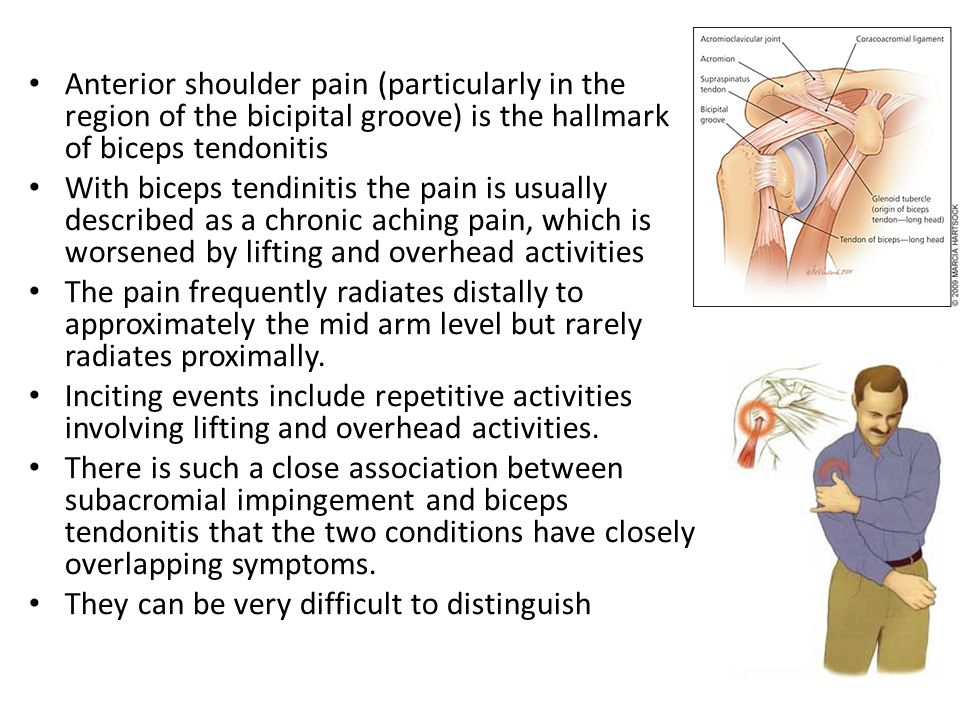 Anterior shoulder pain (particularly in the region of the bicipital groove) is the hallmark of biceps tendonitis With biceps tendinitis the pain is usually described as a chronic aching pain, which is worsened by lifting and overhead activities The pain frequently radiates distally to approximately the mid arm level but rarely radiates proximally.