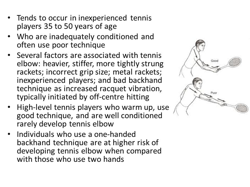 Tends to occur in inexperienced tennis players 35 to 50 years of age Who are inadequately conditioned and often use poor technique Several factors are associated with tennis elbow: heavier, stiffer, more tightly strung rackets; incorrect grip size; metal rackets; inexperienced players; and bad backhand technique as increased racquet vibration, typically initiated by off-centre hitting High-level tennis players who warm up, use good technique, and are well conditioned rarely develop tennis elbow Individuals who use a one-handed backhand technique are at higher risk of developing tennis elbow when compared with those who use two hands