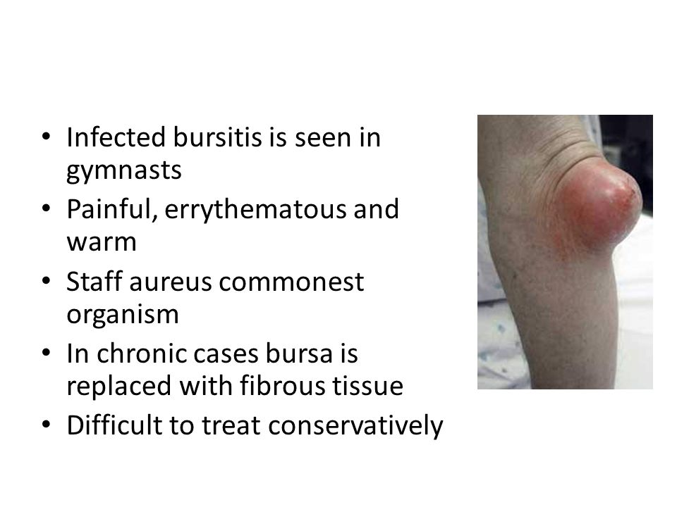 Infected bursitis is seen in gymnasts Painful, errythematous and warm Staff aureus commonest organism In chronic cases bursa is replaced with fibrous tissue Difficult to treat conservatively