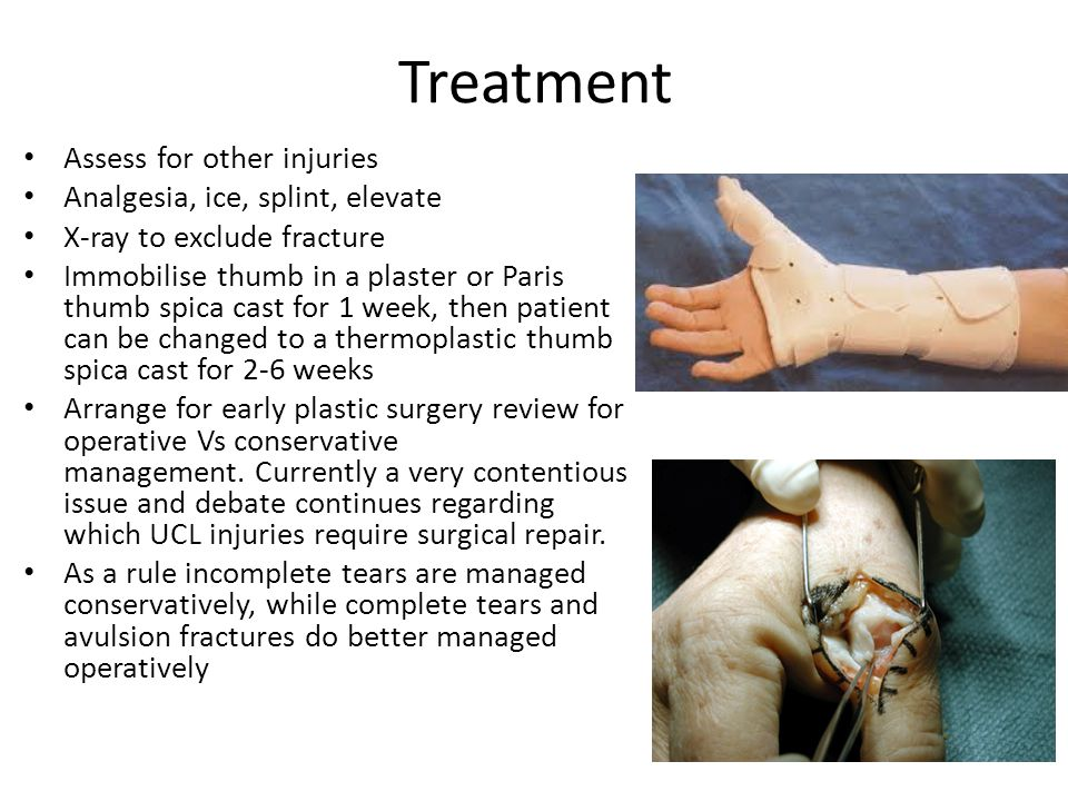 Treatment Assess for other injuries Analgesia, ice, splint, elevate X-ray to exclude fracture Immobilise thumb in a plaster or Paris thumb spica cast for 1 week, then patient can be changed to a thermoplastic thumb spica cast for 2-6 weeks Arrange for early plastic surgery review for operative Vs conservative management.