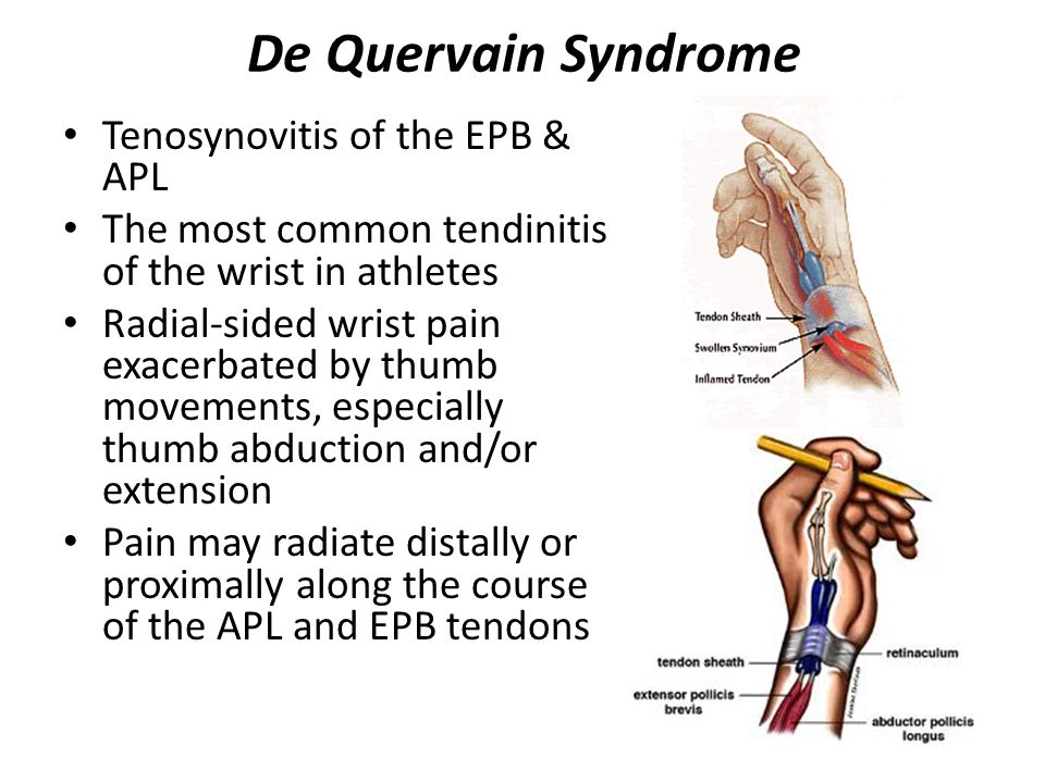 De Quervain Syndrome Tenosynovitis of the EPB & APL The most common tendinitis of the wrist in athletes Radial-sided wrist pain exacerbated by thumb movements, especially thumb abduction and/or extension Pain may radiate distally or proximally along the course of the APL and EPB tendons