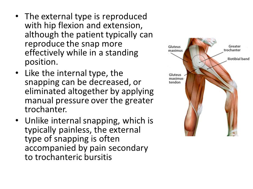 The external type is reproduced with hip flexion and extension, although the patient typically can reproduce the snap more effectively while in a standing position.