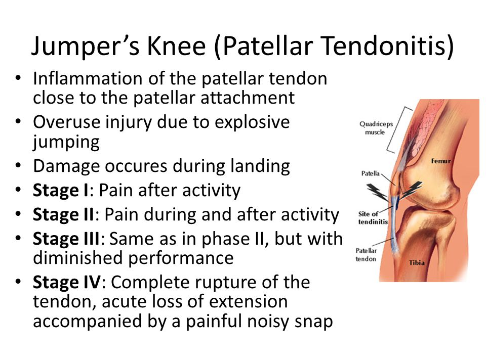 Jumper's Knee (Patellar Tendonitis) Inflammation of the patellar tendon close to the patellar attachment Overuse injury due to explosive jumping Damage occures during landing Stage I: Pain after activity Stage II: Pain during and after activity Stage III: Same as in phase II, but with diminished performance Stage IV: Complete rupture of the tendon, acute loss of extension accompanied by a painful noisy snap