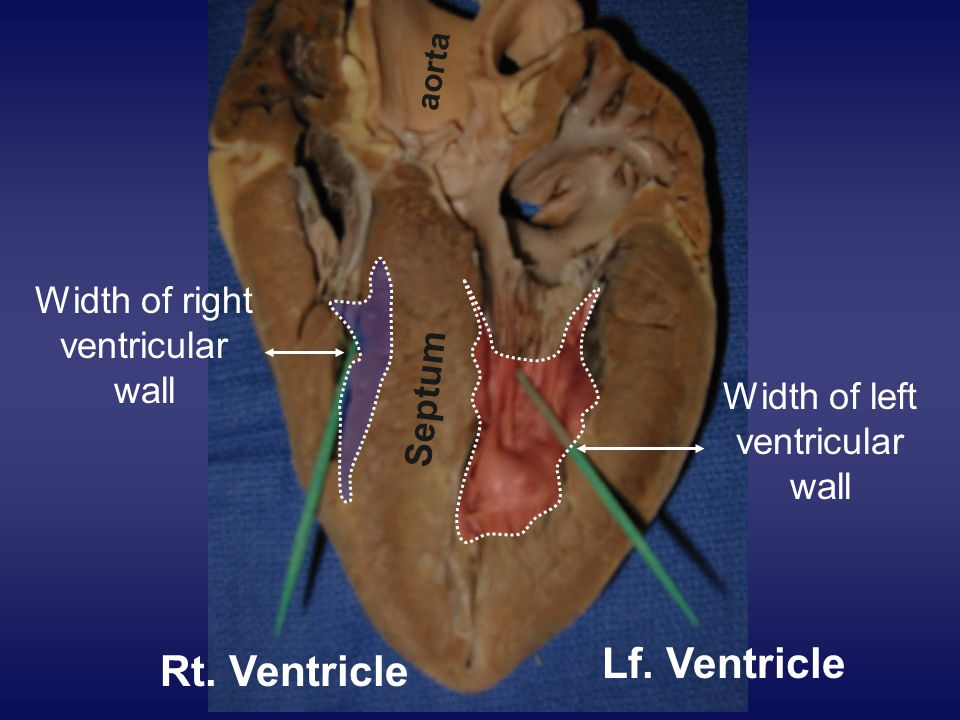 Rt. Ventricle Lf. Ventricle Septum aorta Width of right ventricular wall Width of left ventricular wall