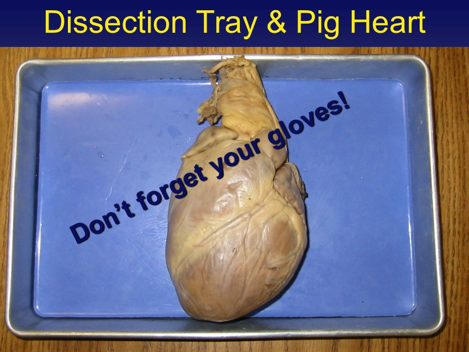 Final Check point Students should be able to trace pathway of blood through great vessels and heart.