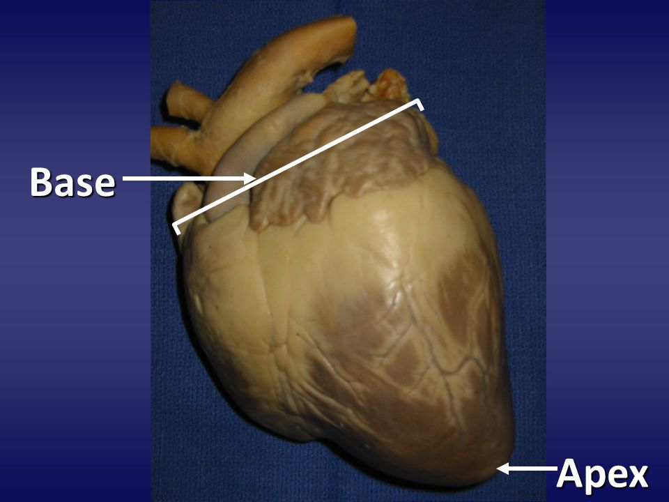 Dissect heart on the coronal plane This separates the anterior and posterior sections