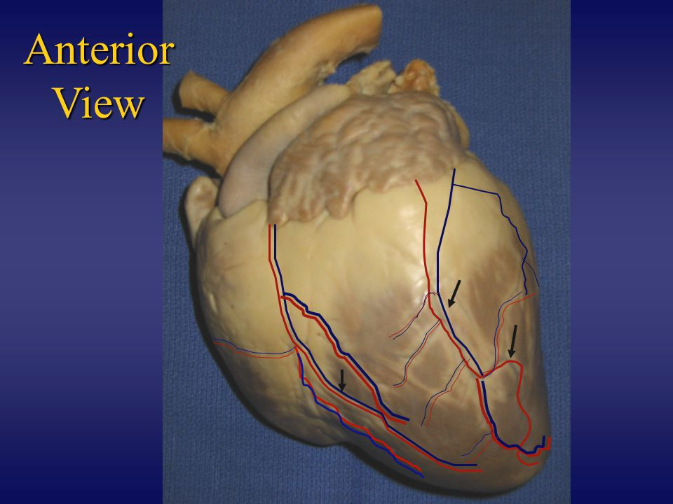 Anterior View--Aortic Arch Aorta Arising from the left ventricle of the heart is the largest artery of the body, the aorta.