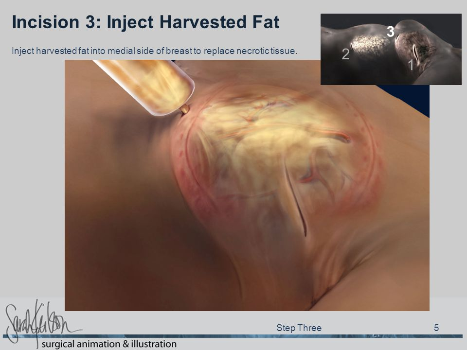 Incision 3: Inject Harvested Fat Step Three 5 Inject harvested fat into medial side of breast to replace necrotic tissue.
