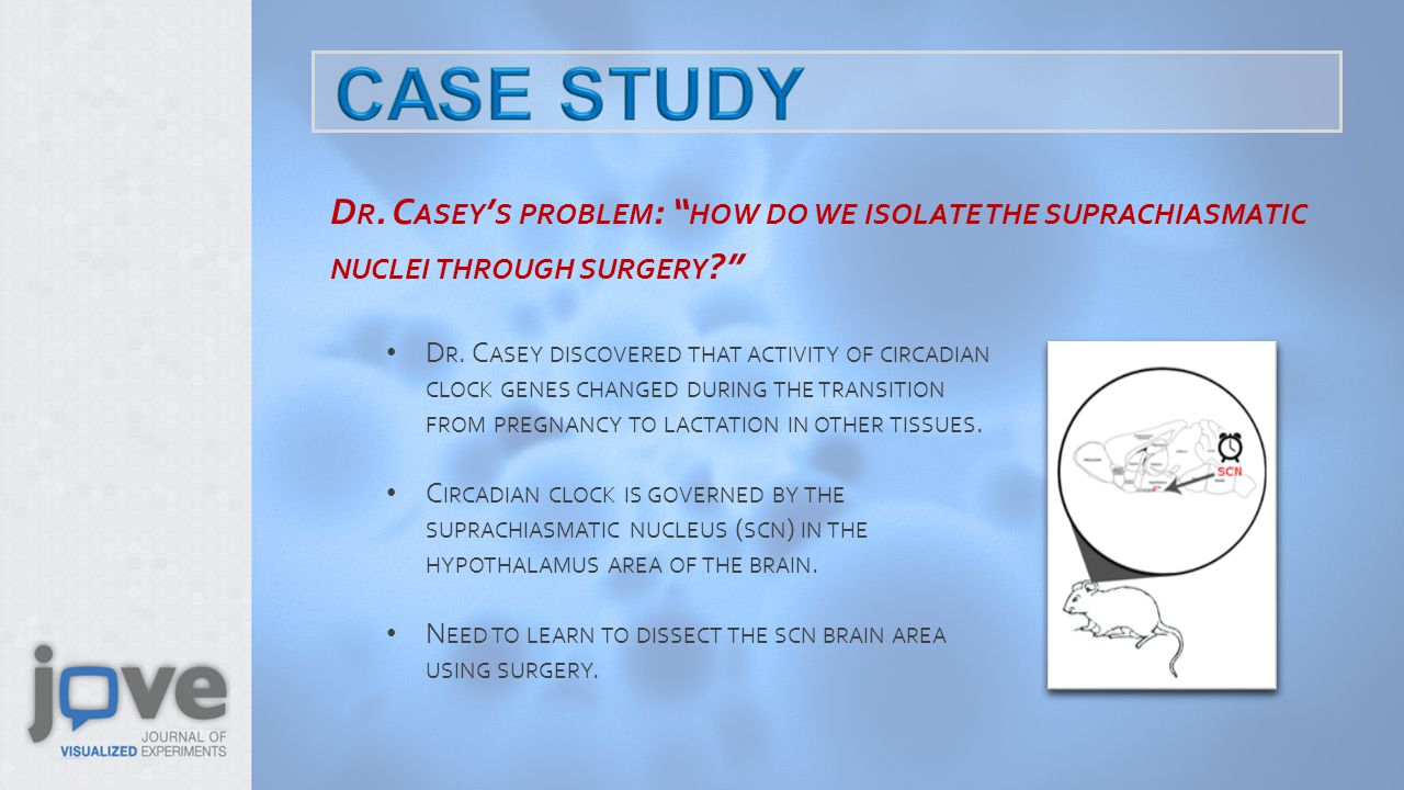 D R. C ASEY ' S PROBLEM : HOW DO WE ISOLATE THE SUPRACHIASMATIC NUCLEI THROUGH SURGERY D R.