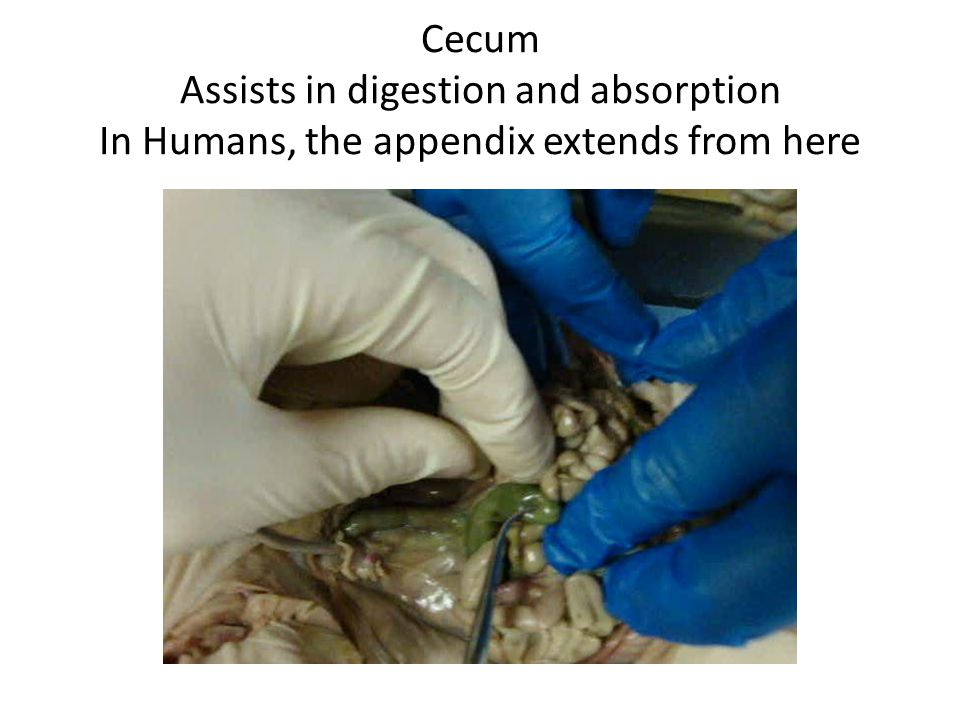 Cecum Assists in digestion and absorption In Humans, the appendix extends from here