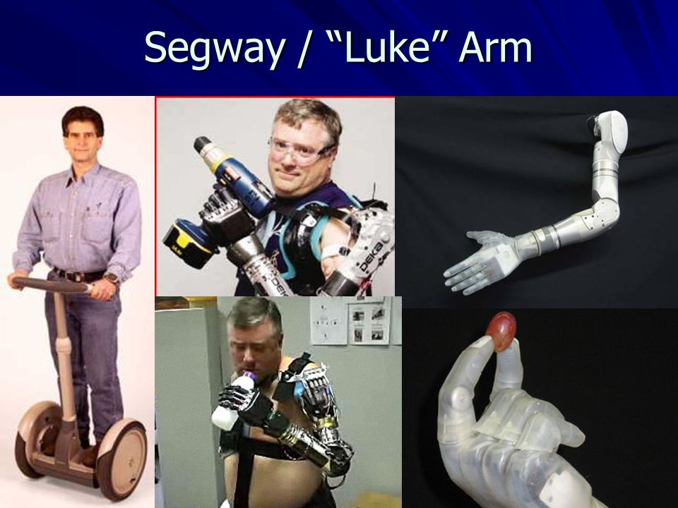 Segway / Luke Arm