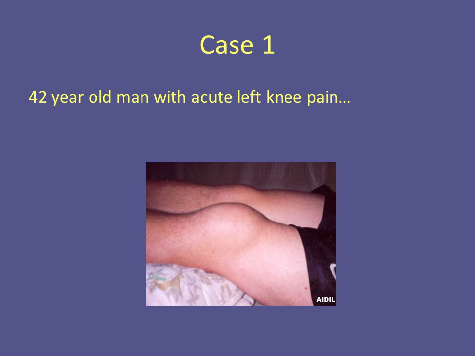Case 1 42 year old man with acute left knee pain…