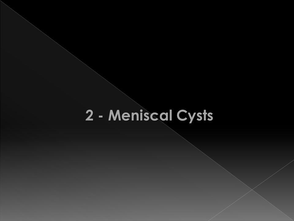 2 - Meniscal Cysts